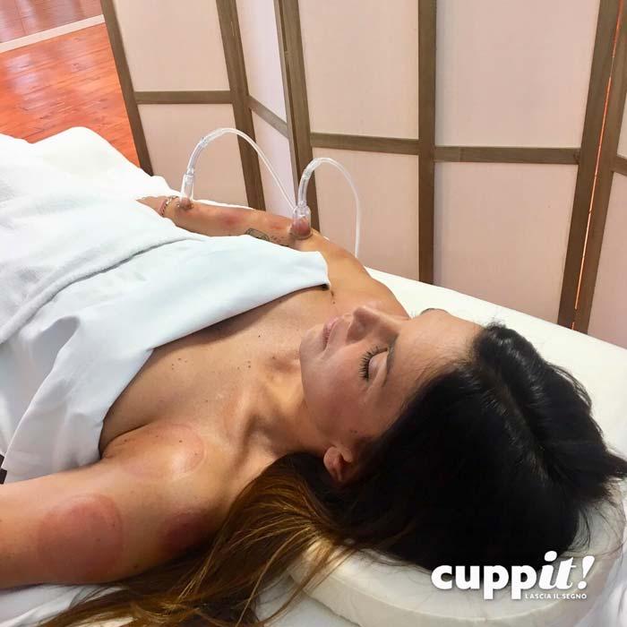 Vittoria coppettazione massaggio